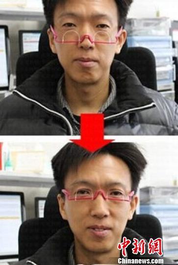 """""""双眼皮眼镜""""受热捧医生称配戴不慎损伤眼皮(图)"""