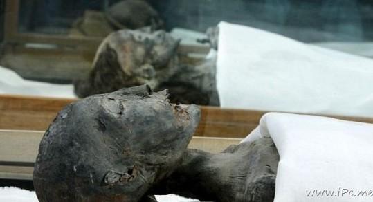 近亲婚配致重病 2010 年2月,古埃及著名的少年法老王图坦卡蒙的身图片