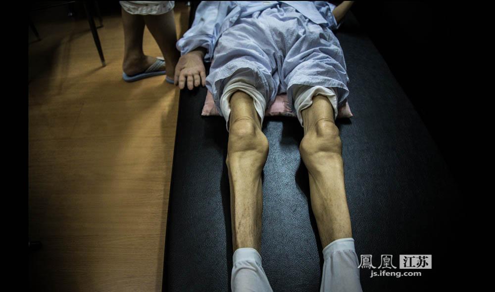 发病至今4年多时间,原本身形健硕于志国已变得骨瘦如柴,体重只剩六七十斤。现在他四肢完全不能动,连脖子也不能自主转动。(彭铭/摄 胥大伟/文)