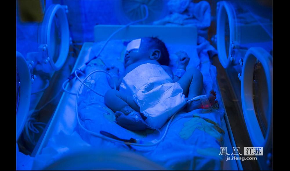 """一名早产儿接受""""蓝光""""治疗,主要是为了治疗黄疸。因为早产儿的肝脏发育不成熟,对胆红素的结合和排泄不好,所以早产儿的生理性黄疸维持时间较普通新生儿要长,早产儿的皮肤也要黑许多。由于""""蓝光""""对早产儿的视网膜和生殖系统会有伤害,因此在治疗时要穿上尿不湿,戴上眼罩。(林琨/摄 胥大伟/文)"""