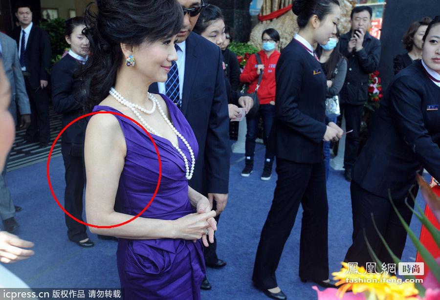 蝴蝶臂:喜欢穿无袖连衣裙的赵雅芝因为肌肉松弛所形成的蝴蝶臂直接将