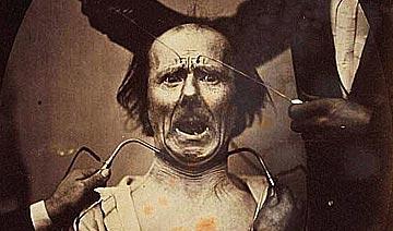 100年前达尔文最后的实验 遭电击穿颅者面部极度扭曲