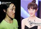 韩国整容节目选手对比照