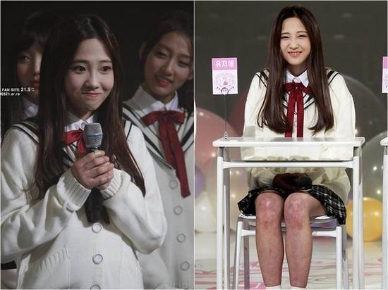 韩女团Lovelyz演出成员膝盖红肿骇人 疑被冻伤
