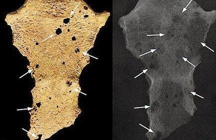 三千年前人类骨骼现