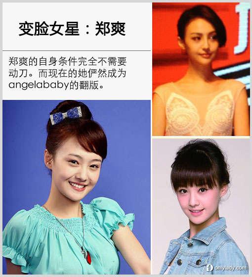 【爱美】郑爽疑整容  盘点娱乐圈的变脸女星