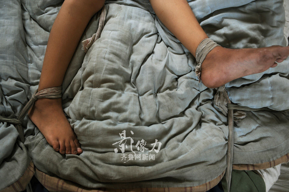 一贫如洗的单亲家庭下的12岁发病女童
