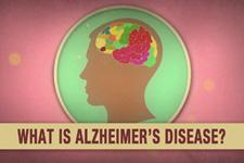阿兹海默症是什么