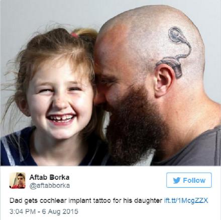 女儿失聪 父亲剃光头纹耳蜗鼓励她(图)