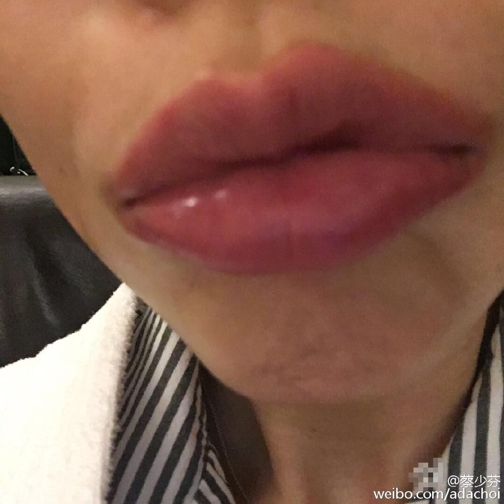 香肠嘴-半夜吃小龙虾的后果 蔡少芬嘴唇红肿 腹泻