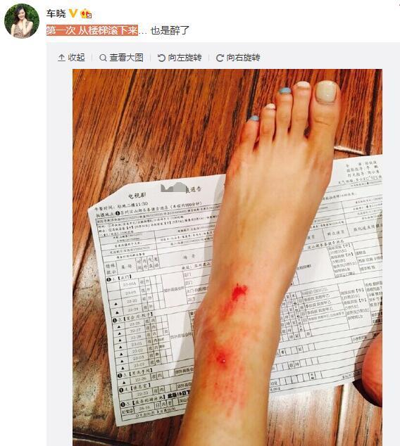 【图文】车晓从楼梯滚下摔伤 膝盖包扎脚部血迹斑斑
