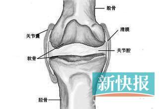 膝关节骨刺、滑膜炎、半月板损伤