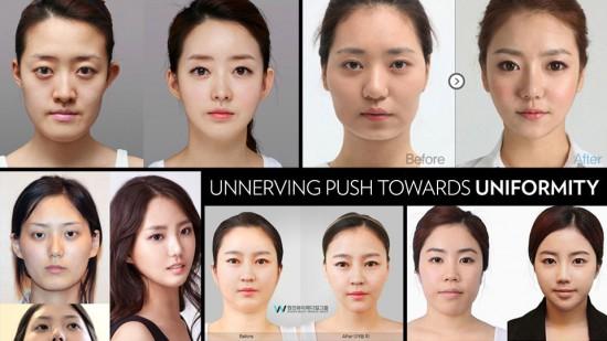 韩国人鼻子
