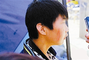 男子被脑勺掏空视频_视频截图  少年右侧脸部有抽打红印,后脑勺有被石块砸肿的大包.