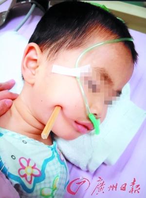 两岁男童摔倒筷子插入脑袋|幼儿园|奶奶_凤凰资讯