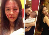 广西美女演员拒弃子女抚养权 遭夫暴打