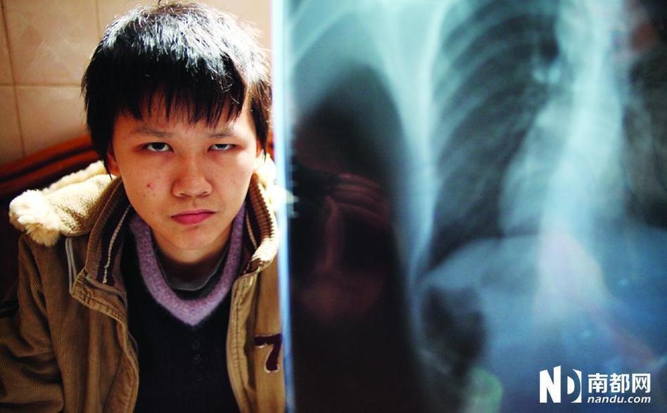 疫苗后遗症的可怜孩子们 - 传统中医 - 《传统中医》王平安