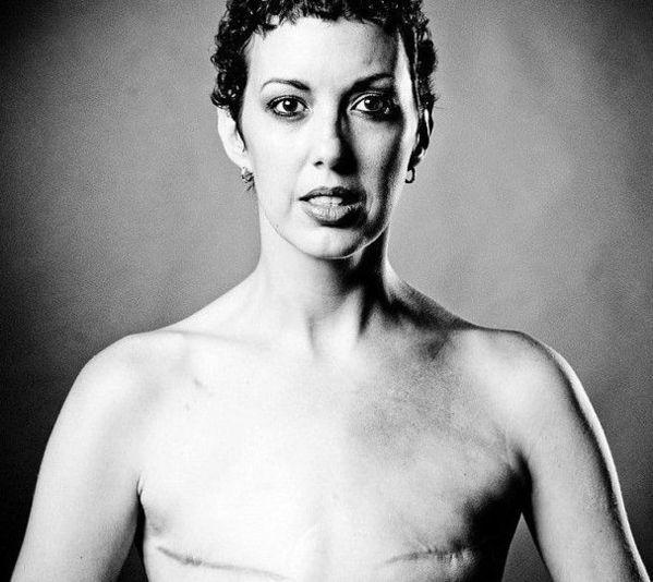 因乳腺癌切除胸部的女人 健康频道