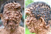 男子全身遍布数百肿瘤致失明