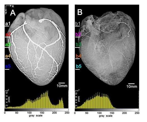 了解心脏,肾脏和其它器官的血管微细结构非常重要
