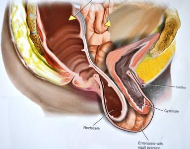 专家解析:女人阴道到底有多长?