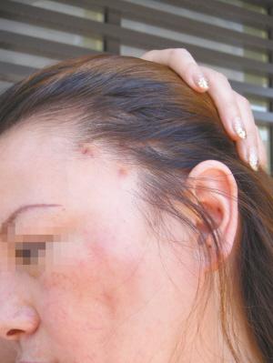 ????■整容后的曹女士面部皮肤泛红,鬓角处留下疤痕、色沉。