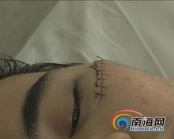 缝伤口拆线图解步骤
