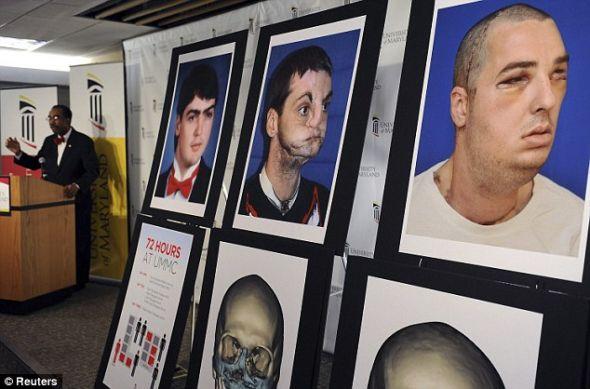 人生改变:马里兰大学医学中心展出的这些图片显示了诺里斯在枪击事故前后的不同阶段