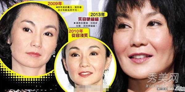 整容_女星整容后遗症吓死人:王菲脸僵硬 刘晓庆太恐怖