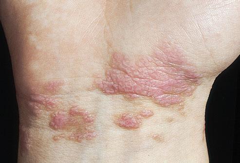 图解皮肤上的癌症信号 皮肤状况 斑块 凤凰健康